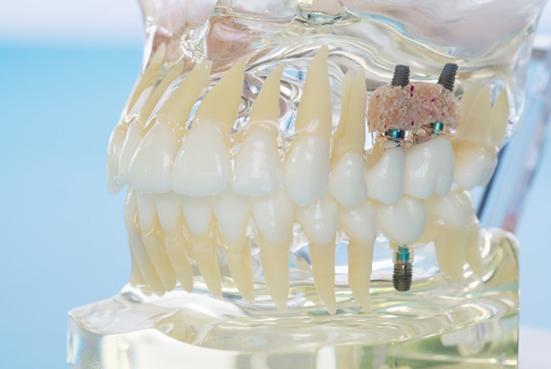 What Is Bone Grafting