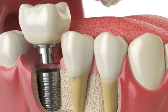 Who Is A Candidate For A Dental Implant