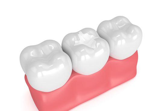 Who Is A Good Candidate For Sealants
