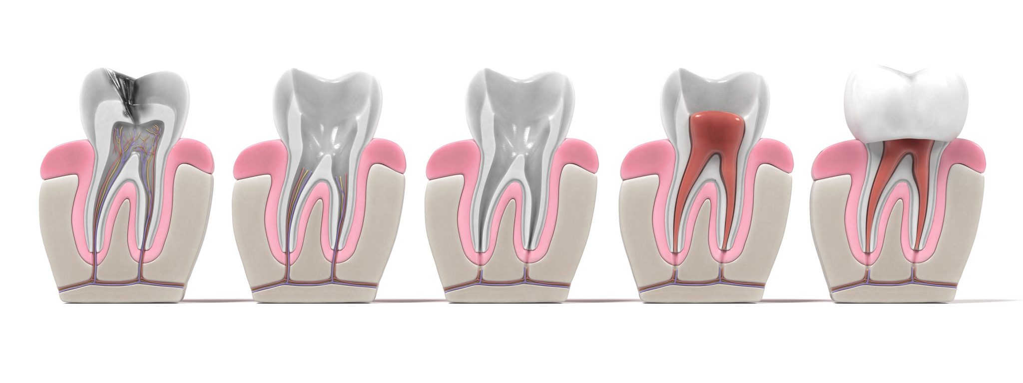 3d Renderings Of Endodontics Root Canal Procedure