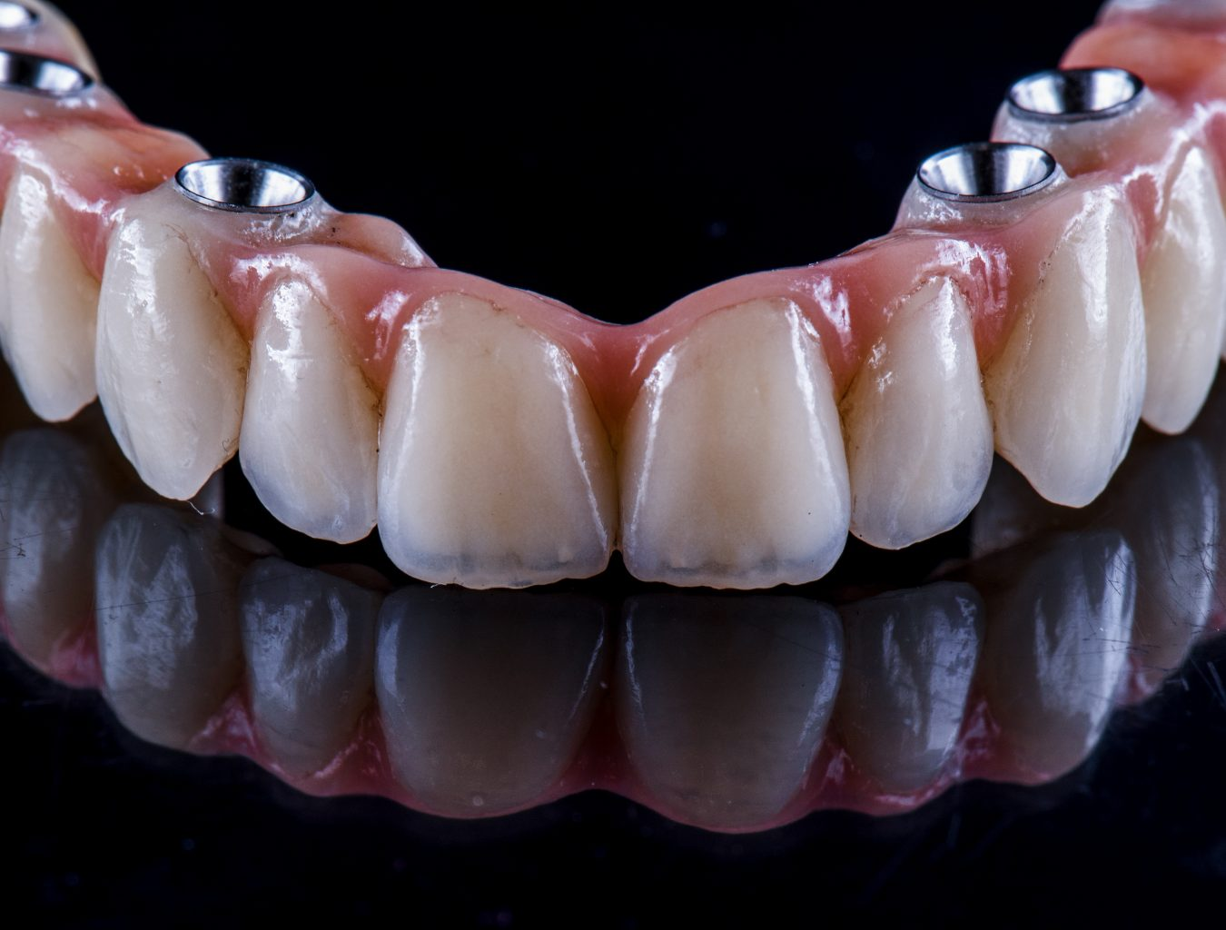 Full Arch Ceramic Bridge On Implants