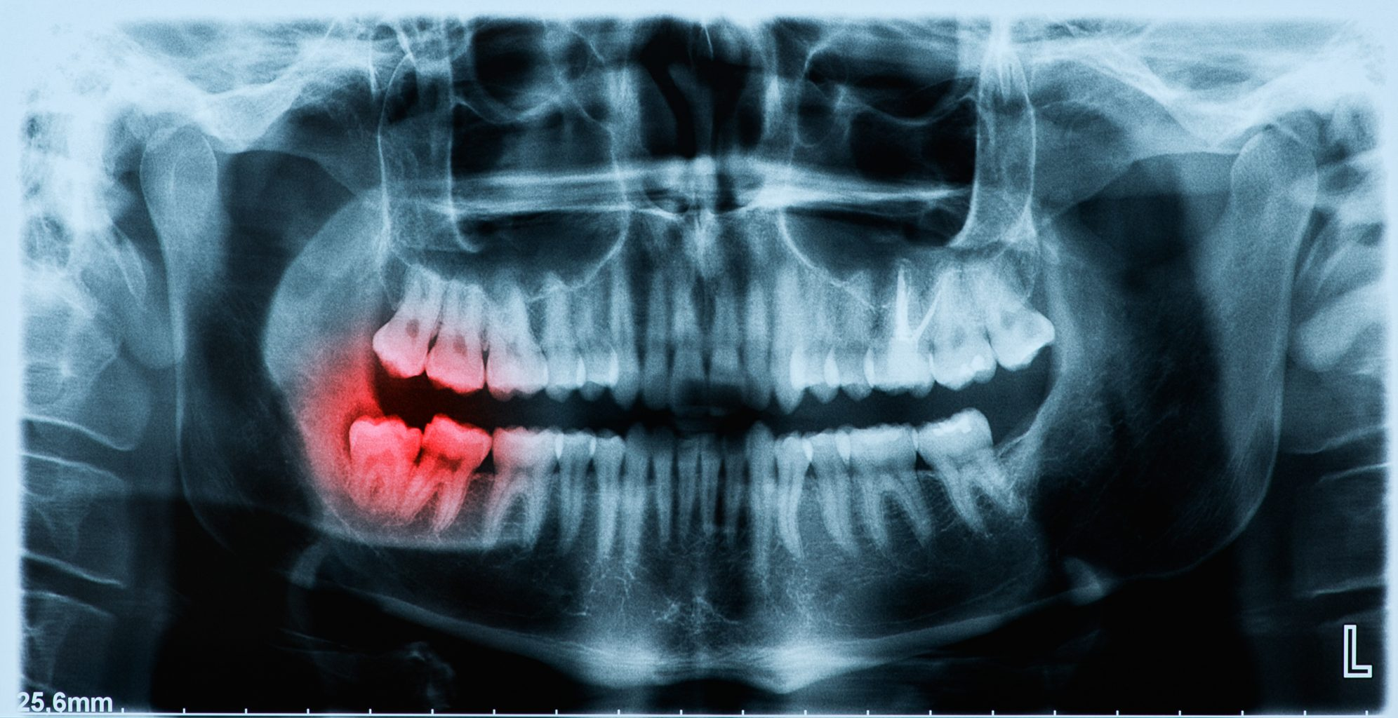 Panoramic X Ray Image Of Teeth And Mouth With Wisdom Teeth