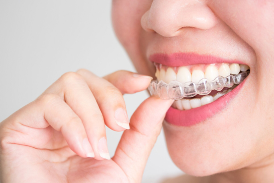 Remove Your Invisalign Before Eating
