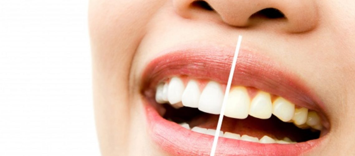 Professional Whitening Is Effective